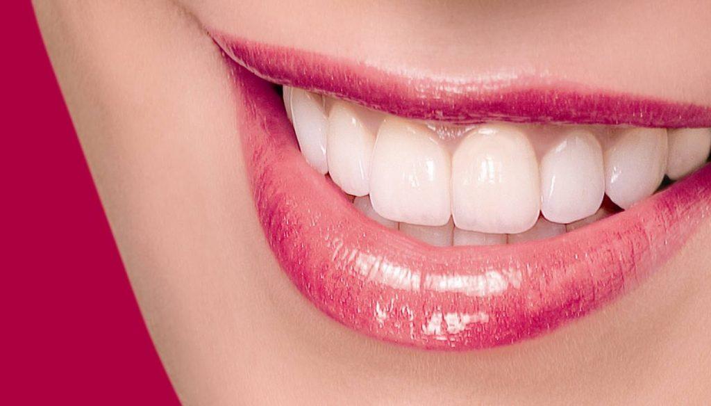 سفید شدن دندان با بلیچینگ