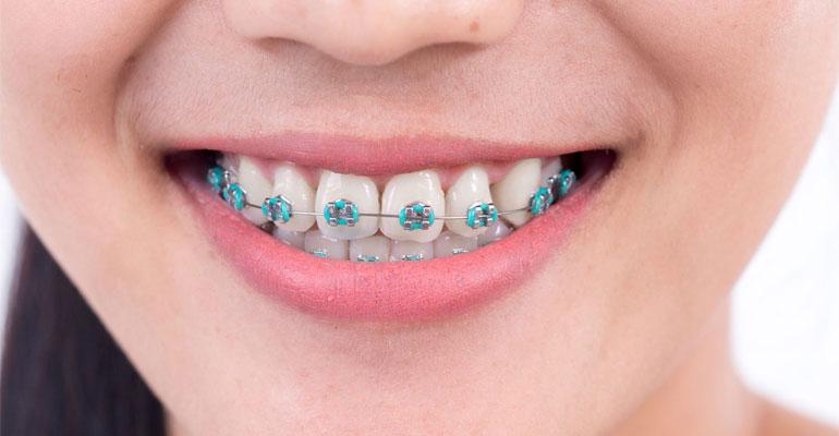 بستن فاصله بین دندان ها با ارتودنسی