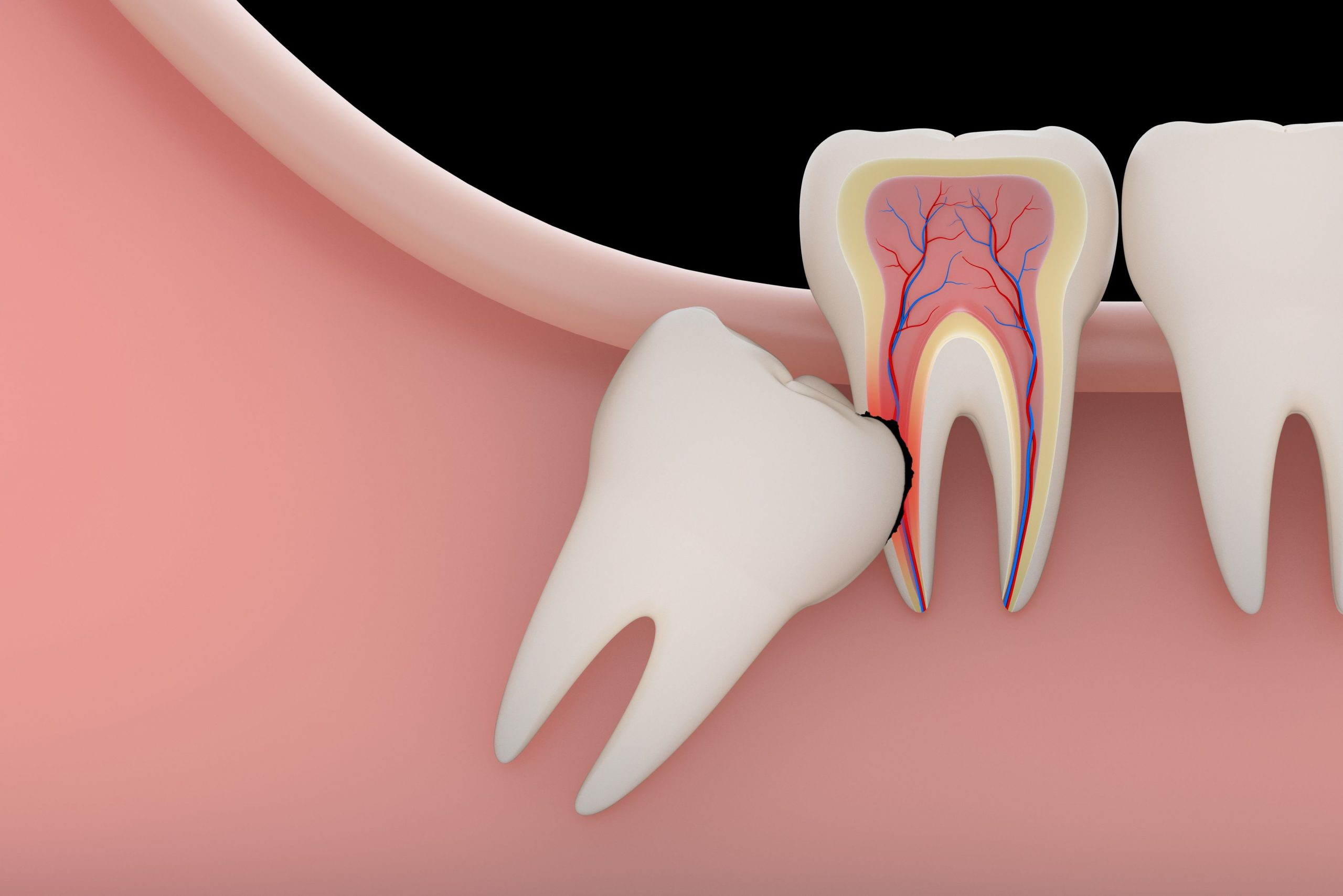 کشیدن دندان عقل